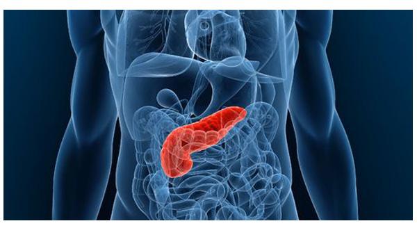 como-combatir-cancer-de-pancreas-3