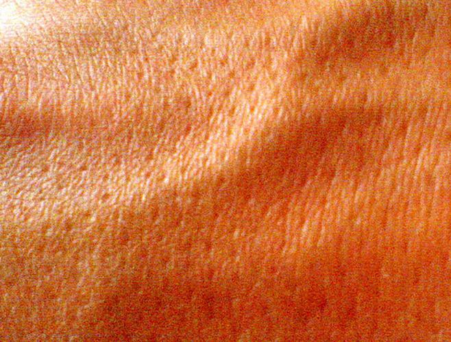 poros en la piel