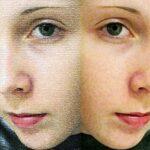 Hipotiroidismo: síntomas en la piel, el cabello y las uñas